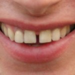 gap-teeth