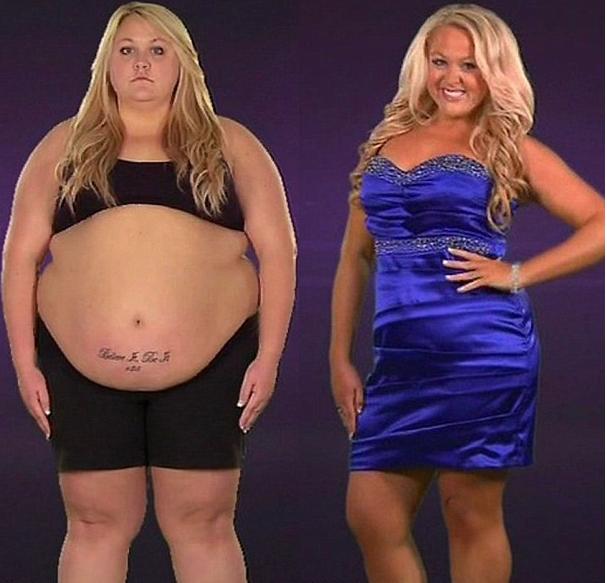 Экстремальное Похудения На Тлс. Передачи канала TLC об ожирении